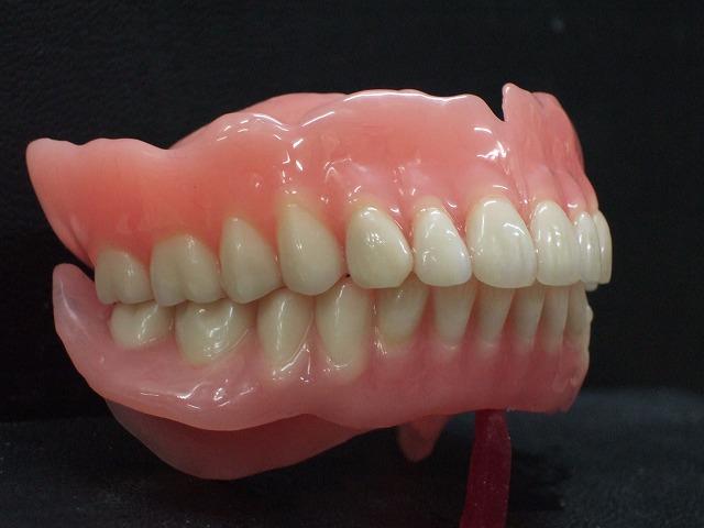 入れ歯の種類について
