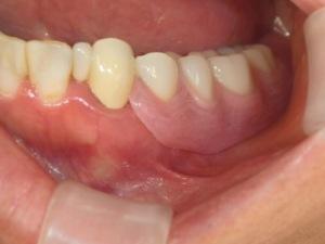 金属バネのない部分入れ歯
